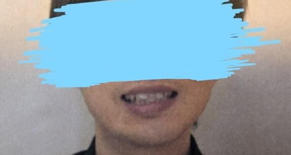矯正前歯並び引きの画