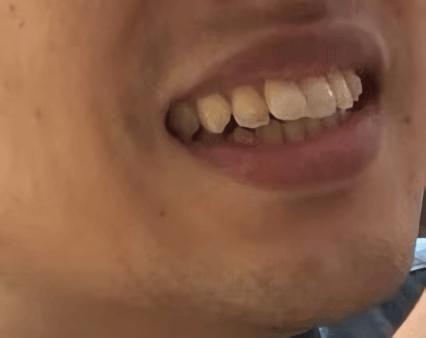 歯並び1年