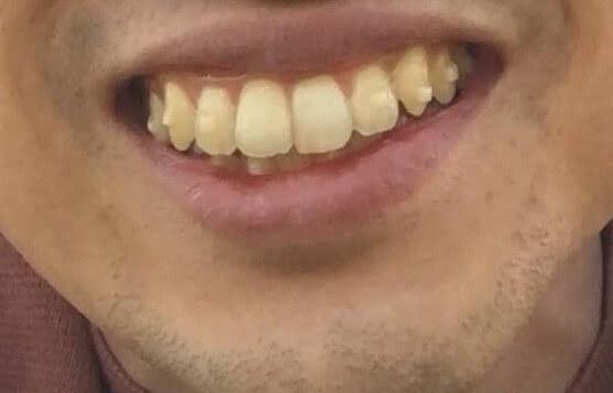歯並び2年後