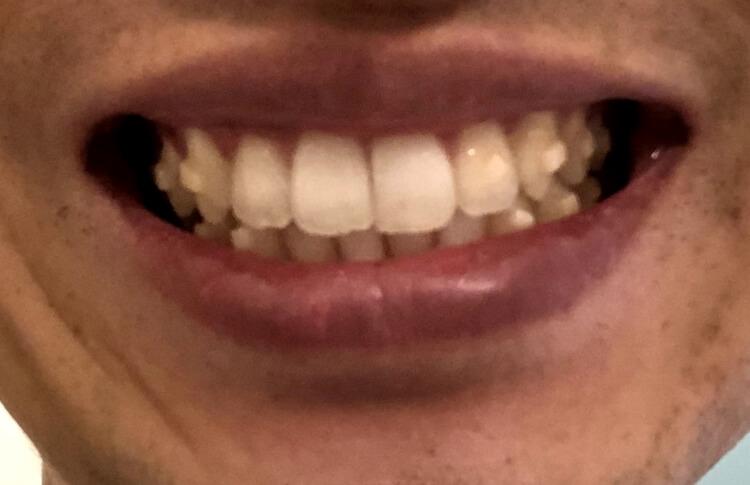 歯並び3年後