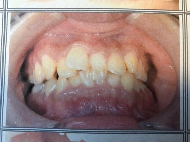 歯列矯正前